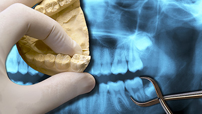 Model smile and x-rays of teeth to be extracted