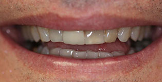 Closeup of dark colored teeth