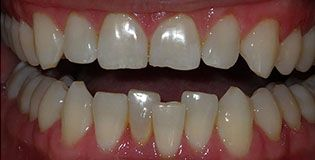 Closeup of uneven teeth