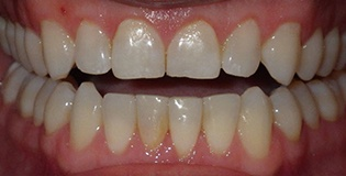 Teeth after inman treatment