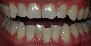 Teeth before Inman treatment