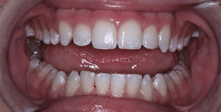 Closeup of flawlessly aligned bottom teeth