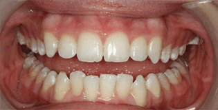 Closeup of misaligned bottom teeth