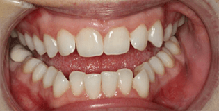 Closeup of slighly misaligned smile
