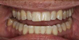 Perfectly aligned teeth after treatment