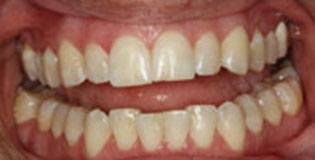 Crowded teeth before treatment