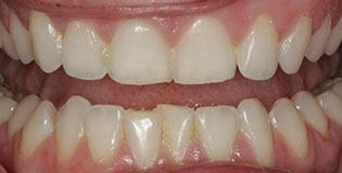 Overlapping bottom teeth