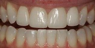 Closeup of smile flawlessly aligned after treatment
