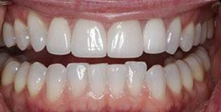 Closeup of patient's smile before treatment