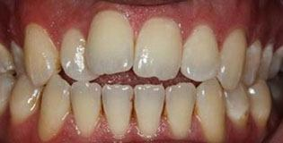 Closeup of uneven top and bottom teeth