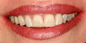 Closeup of woman's discolored teeth