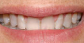 Closeup of smile with tetracycline stains