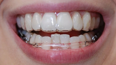 Closeup of smile with aligner tray in place