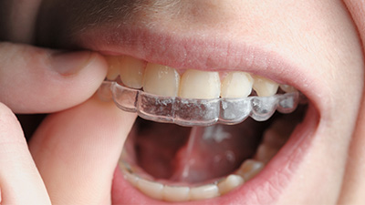 Closeup of patient placing Invisalign tray