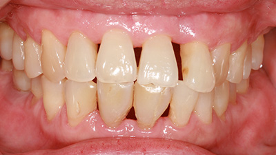 Closeup of patient's smile with gum disease