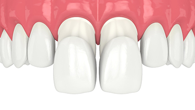 Illustration of two porcelain veneers placed over front teeth