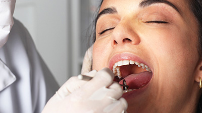 Woman with eyes closed receiving dental care