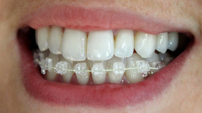 closeup of smile with Six Month Smiles braces in place