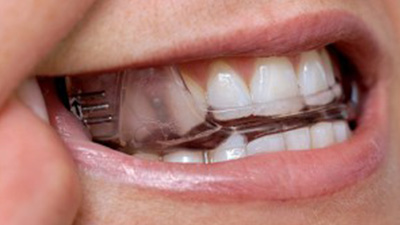 Closeup of patient using oral appliance