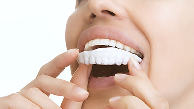 Woman placing at-home whitening tray