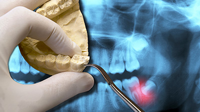 Wisdom Tooth Extractions Irving | What Are Wisdom Teeth