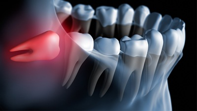 Image of an impacted wisdom tooth