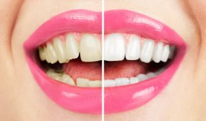 Get a whiter smile using these methods.