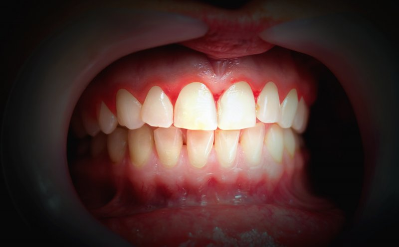 Image of mouth with red, bleeding gums; gum disease