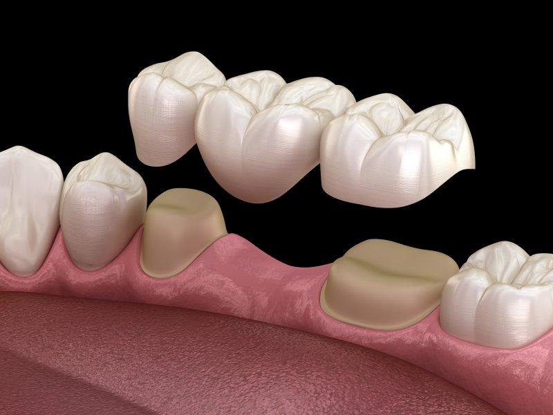 Illustration of dental bridge in Irving over natural teeth